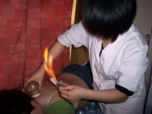 Fire Cupping Ancient Healing Technique